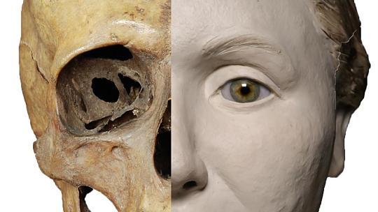 Kristina skelett